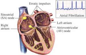 Toca Comer. Programa riesgo cardiovascular. Marisol Collazos Soto
