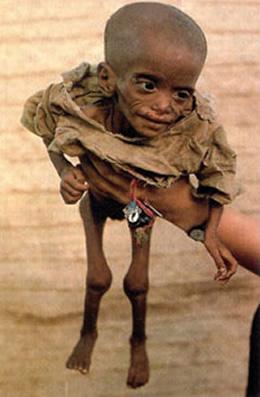 Toca Comer. a lucha contra el hambre: 38 países logran reducir sus cifras críticas . Marisol Collazos Soto, Rafael Barzanallana